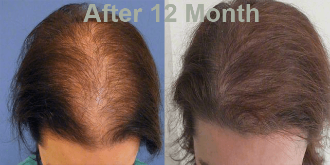 FUE Hair Transplant in Islamabad Before and After