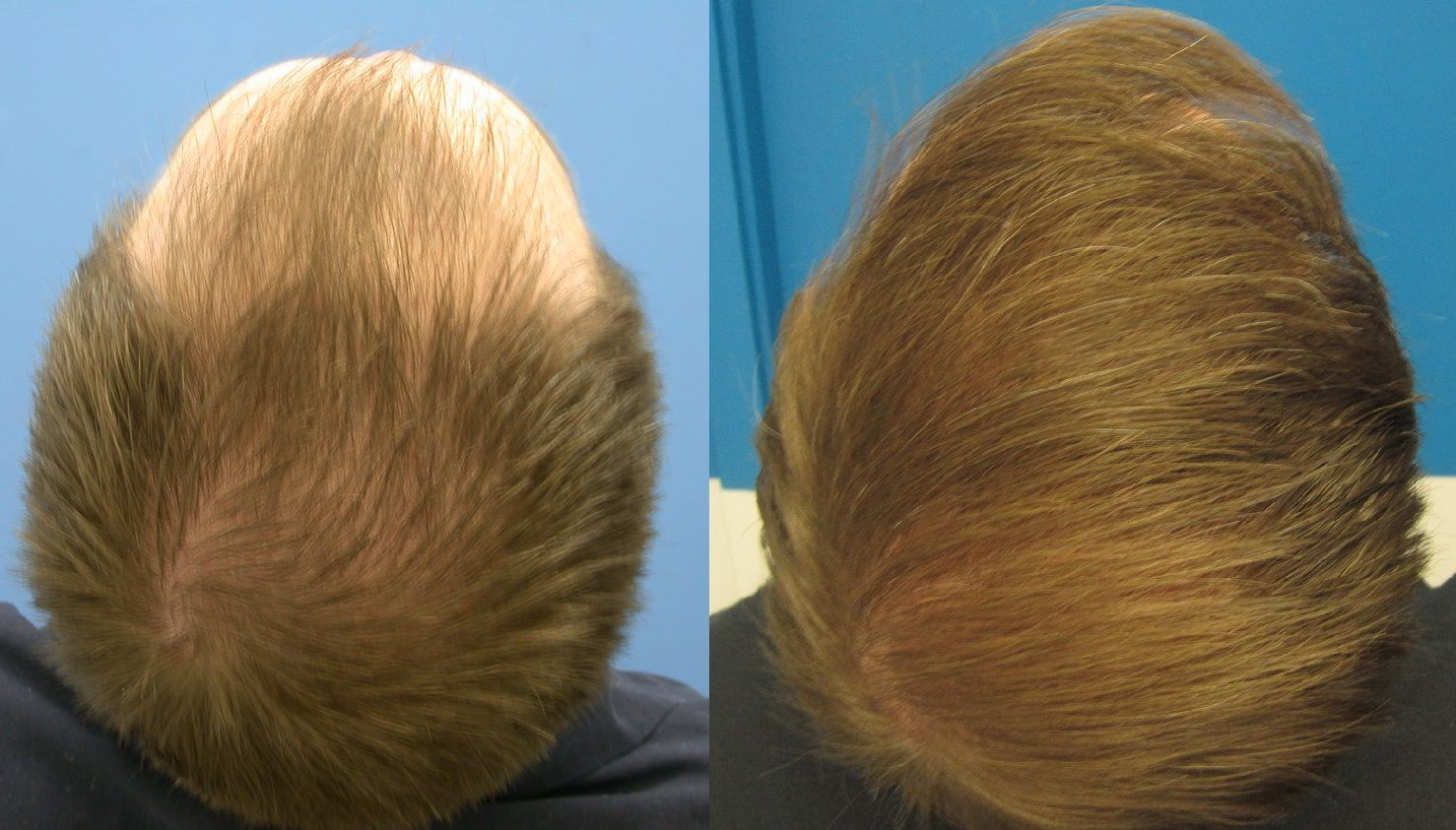 UT hair transplant Islamabad after and before picture
