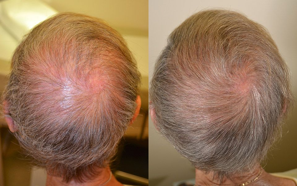 FUT hair transplant Islamabad before and after results