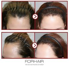 Hair-Transplant-clinic-in-Islamabad-Rawalpindi