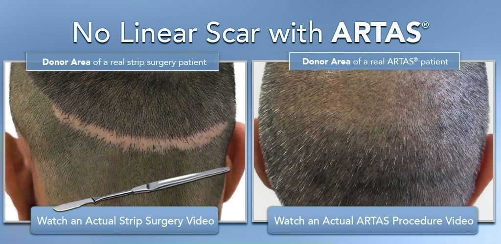 Robotic Hair Transplant Dubai-min