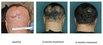Stem-Cell-Hair-Transplant-islamabad-Before-and-After