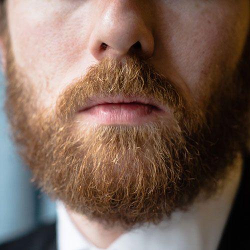 Moustache Hair Transplant in Islamabad, Rawalpindi, Peshawar