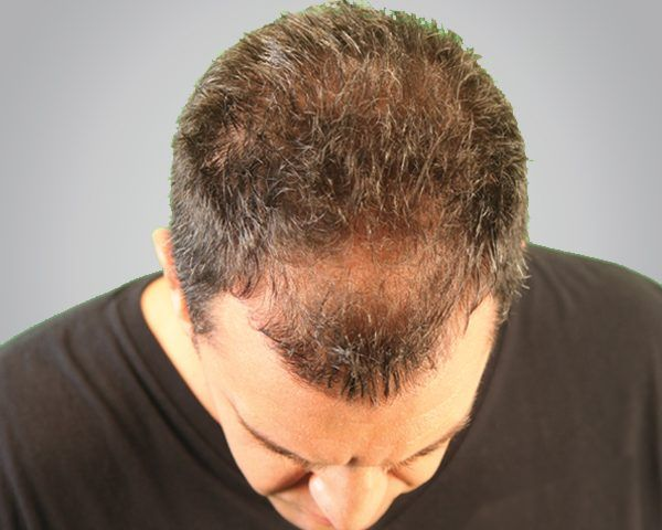 crown hair transplant in Islamabad, Rawalpindi, Peshawar