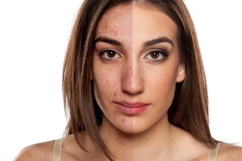 Acne Scars Treatment in Islamabad Rawalpindi