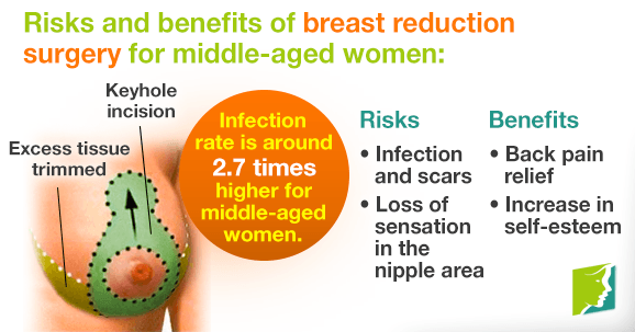 Breast Reduction Benefits in Islamabad, Rawalpindi
