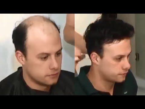 Hair Wigs in Rawalpindi and Islamabad