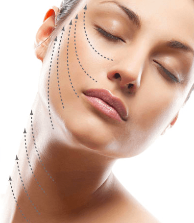 Thread Lift Treatment in Islamabad, Rawalpindi & Pakistan